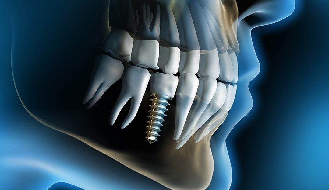 Implant dentar si coroana zirconiu