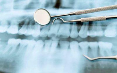 Ce se întâmplă după extracția dentară