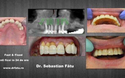 Dinți ficși și implanturi dentare în 24 de ore