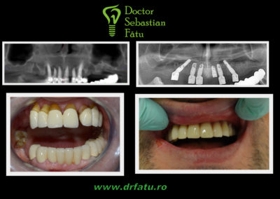 Implant dentar rapid
