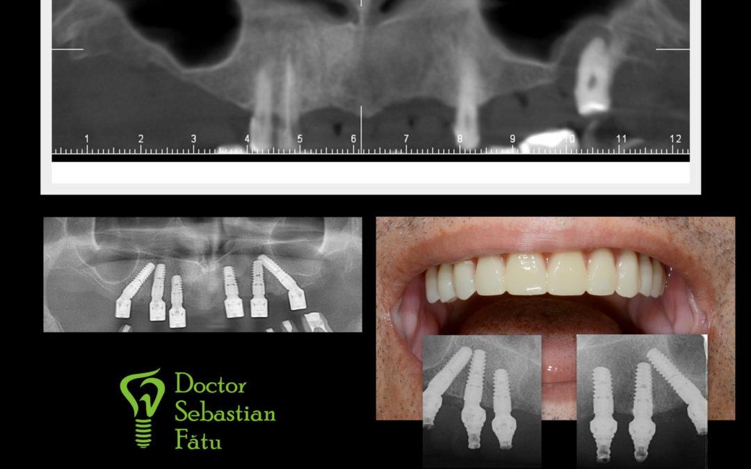 Dinti intr-o zi cu ajutorul implantului dentar Bredent