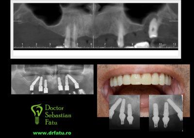 Dinți în 24 de ore