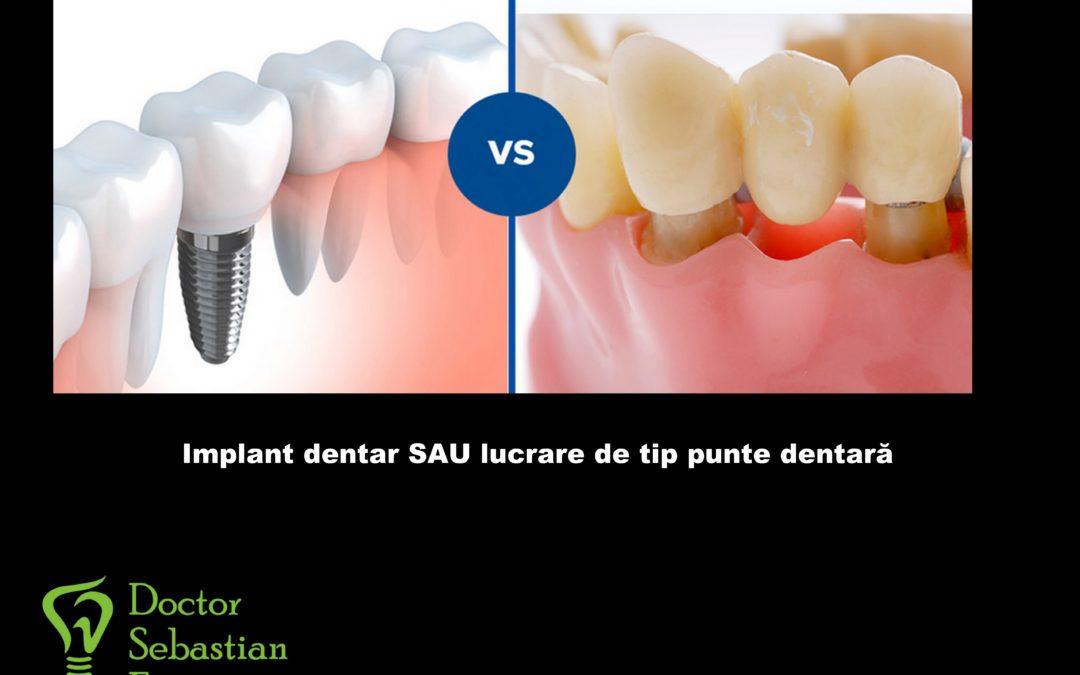 Implant dentar sau lucrare dentara clasica