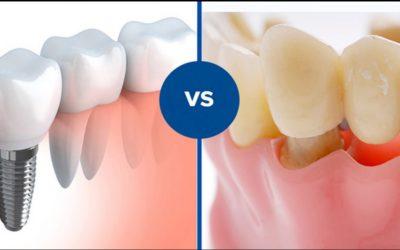 Implant dentar sau lucrare dentară clasică