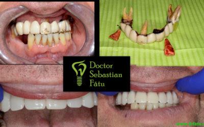 Implant Dentar Rapid – Dantură fixă într-o zi