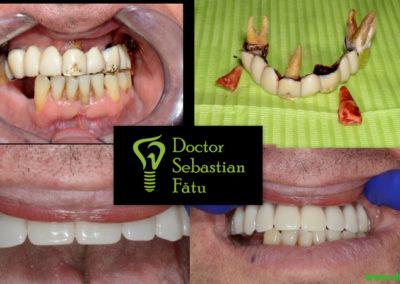Implant dentar într-o zi