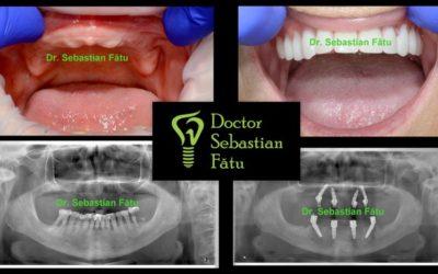 Fast Fixed implanturi dentare intr-o zi