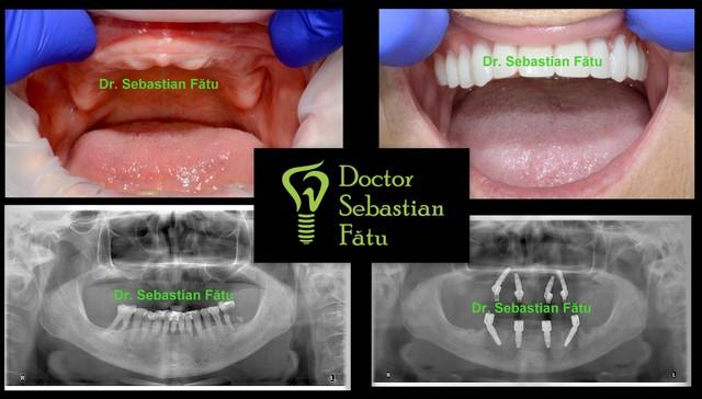 Fast Fixed – implanturi dentare într-o zi