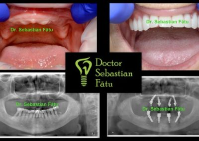 fast fixed implant dentar intr-o zi