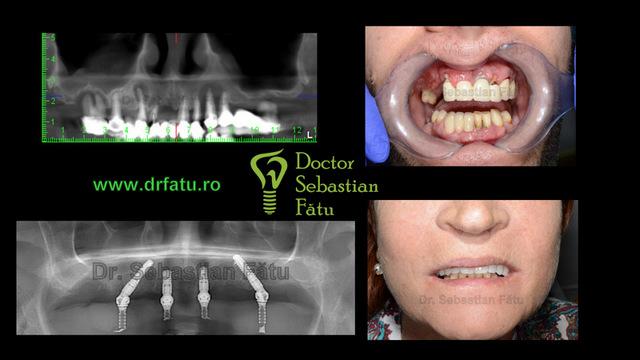 Fast and Fixed – implanturi dentare intr-o zi