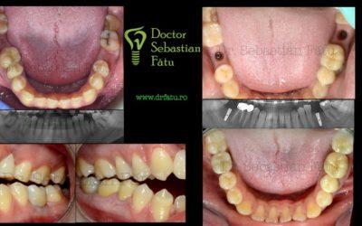 Implant dentar și coroană din zirconiu