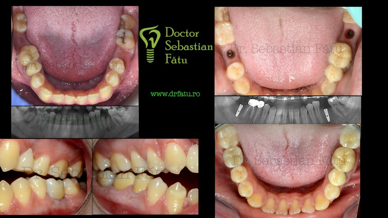 Implant dentar si coroane din zirconiu