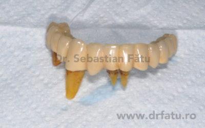 Implanturi dentare Bredent
