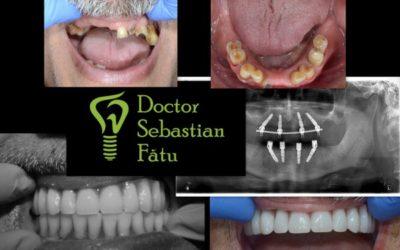 Caz clinic – implant dentar intr-o zi