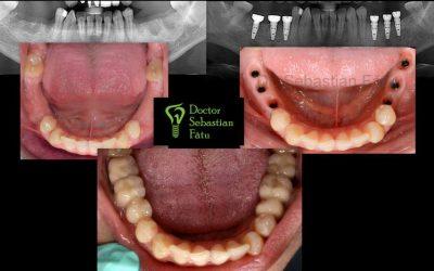 Tratament stomatologic cu ajutorul implantului dentar ( caz clinic)